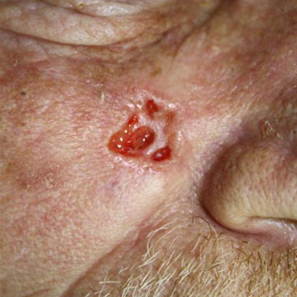 Basaliom - Praxisklinik Dr. Hasert Berlin - Hautarzt