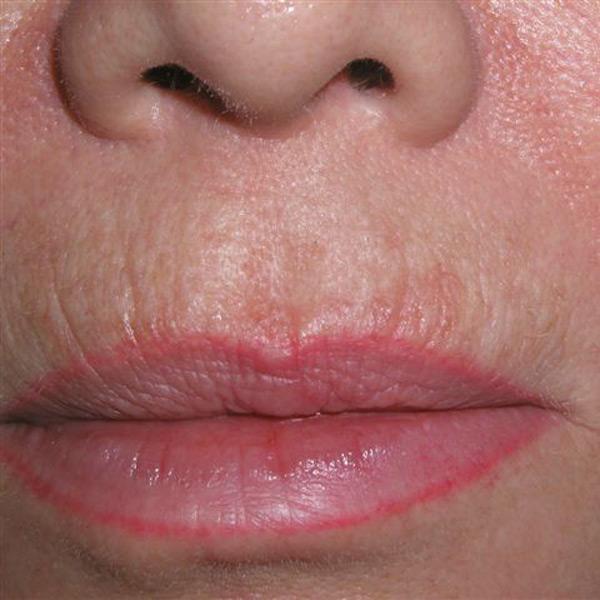 Lippenaugmentation   Praxisklinik Dr. Hasert Berlin   Hautarzt