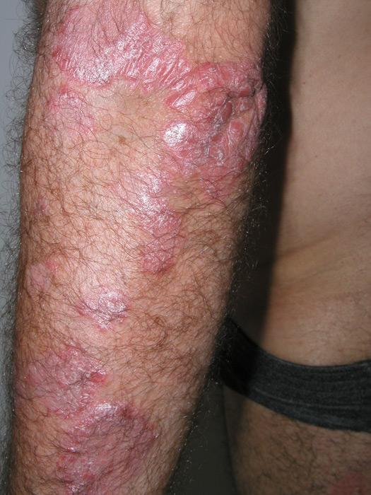 Psoriasis | Praxisklinik Dr. Hasert Berlin | Hautarzt