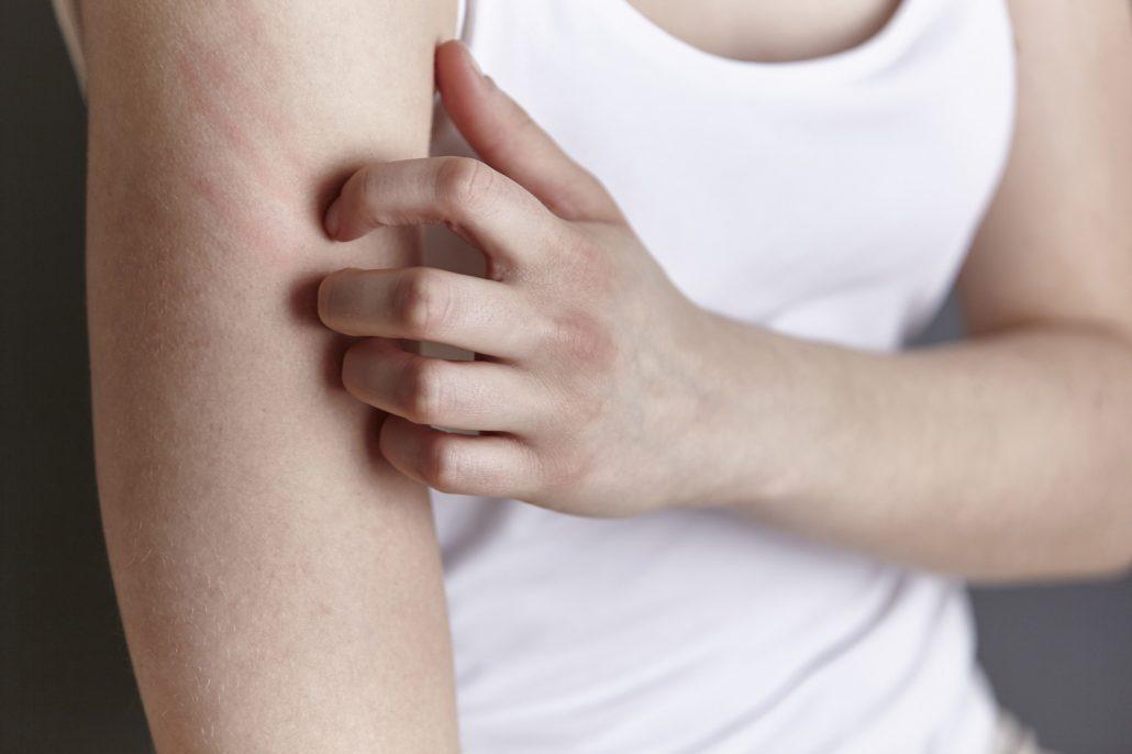 Eine Person kratzt sich am Arm – in seiner Berliner Praxisklinik behandelt Hautarzt Dr. Hasert Hauterkrankungen jeder Art