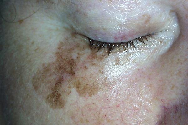Schwarzer Hautkrebs (Melanom)